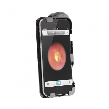 Adaptador iExaminer 6 y 6S (ref. 11840-A6 ) con Set PanOptic e  iPhone (no incluídos)